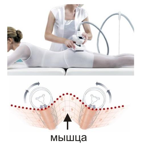 Физиология вакуумного lpg массажа
